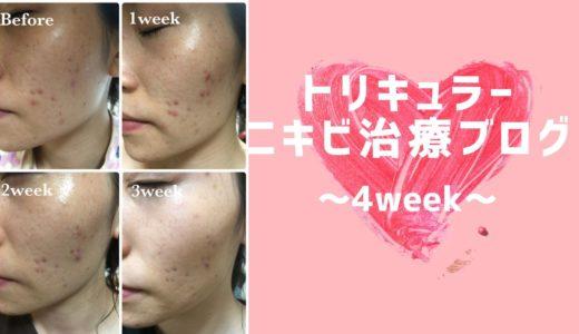 【原因不明ニキビ】低用量ピル(トリキュラー)ブログ 4週間目
