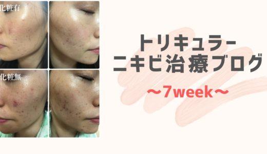 【原因不明ニキビ】低用量ピル(トリキュラー)ブログ 7週間目