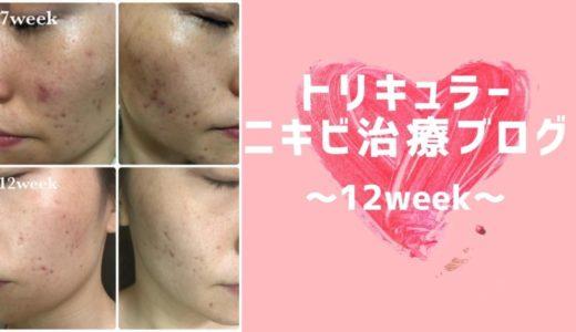 【原因不明ニキビ】低用量ピル(トリキュラー)ブログ 12週間目